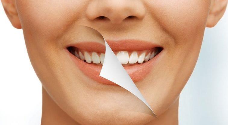 Несколько советов как избавиться от зубного камня в домашних условиях