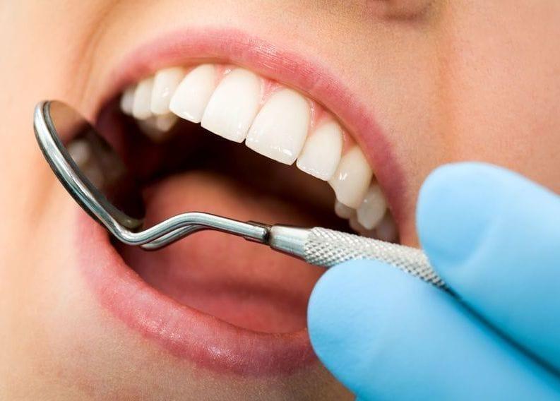 как удалить камень на зубах в домашних условиях