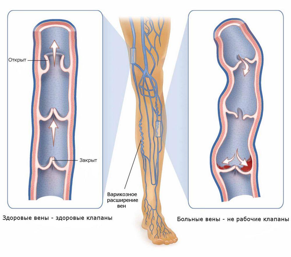 Как снять воспаление вен при варикозе