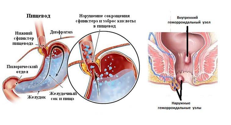simptomyi-prichinyi-i-profilaktika-varikoza-02