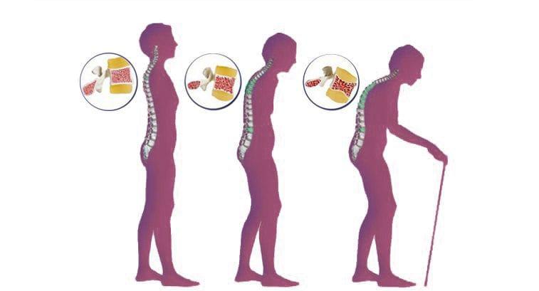 Остеопороз: симптомы и лечение у пожилых женщин после 40, 50 лет. Профилактика остеопороза при климаксе: как лечить, лекарства