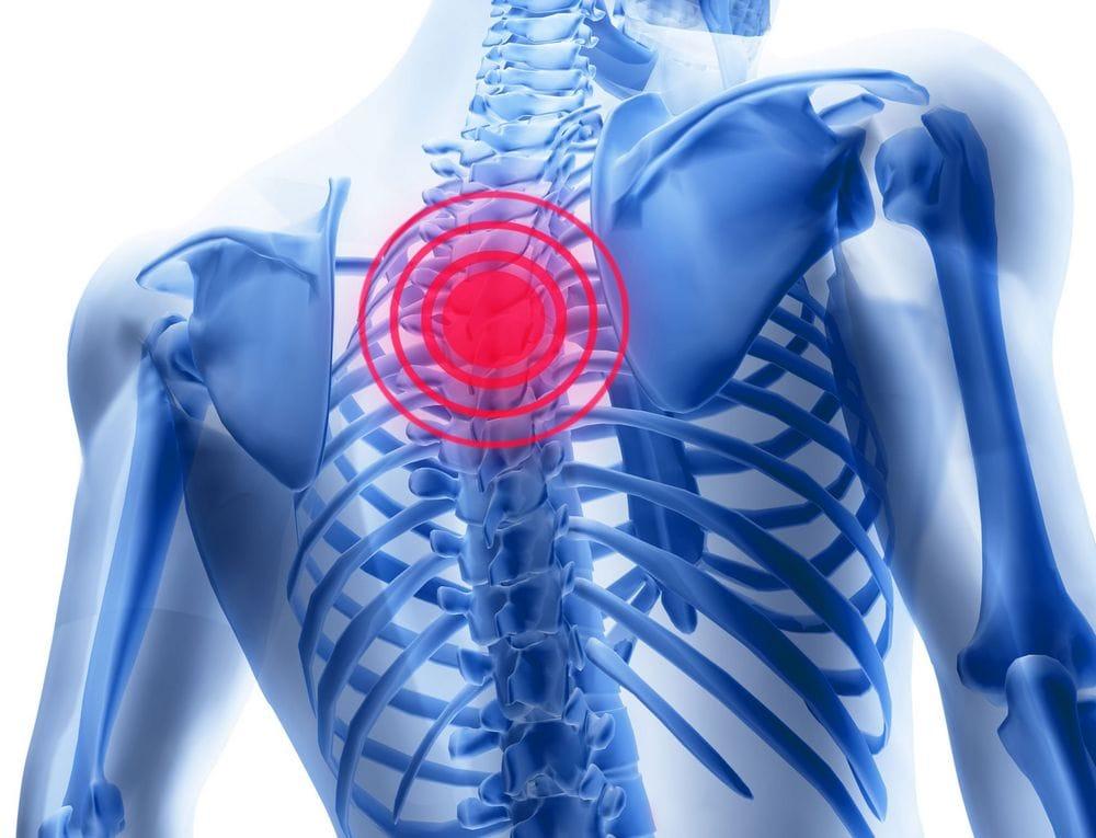 Остеохондроза нижнего грудного отдела или межреберной невралгии