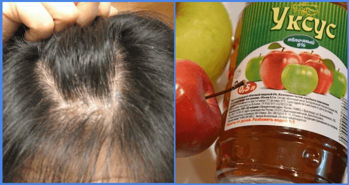 яблочный уксус от вшей